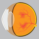 Medical illustration depicting an eye with diabetic retinopathy