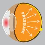 Glaucoma (1).jpg