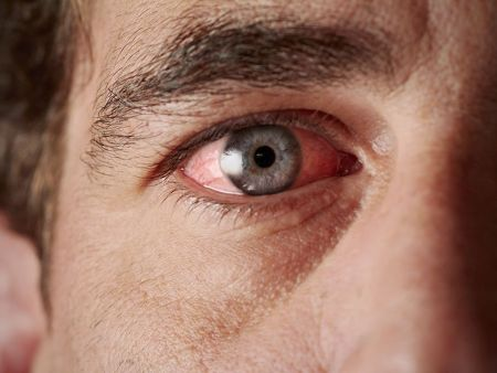 Closeup of man experiencing dry irritated eyes
